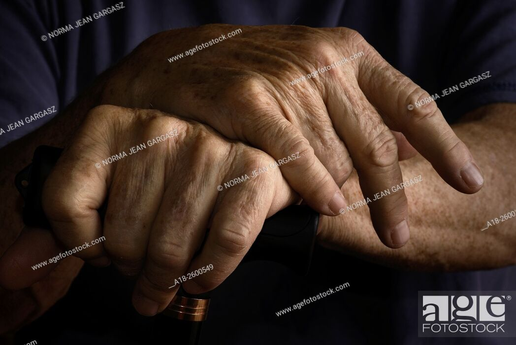 Stock Photo: Hands of an elderly woman with chronic health and medical issues grasp a walking cane.