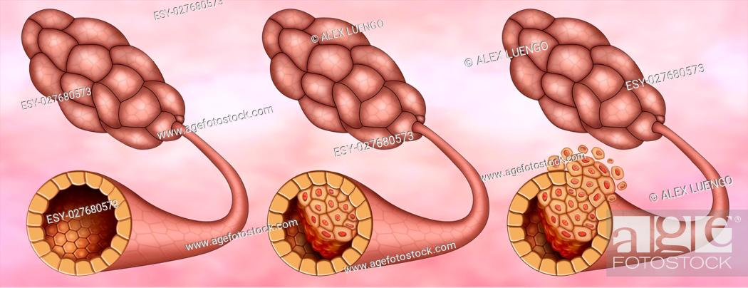 Stock Photo: Illustration of the breast lobes where we can see one healthy and two with ductal carcinoma insitu and.