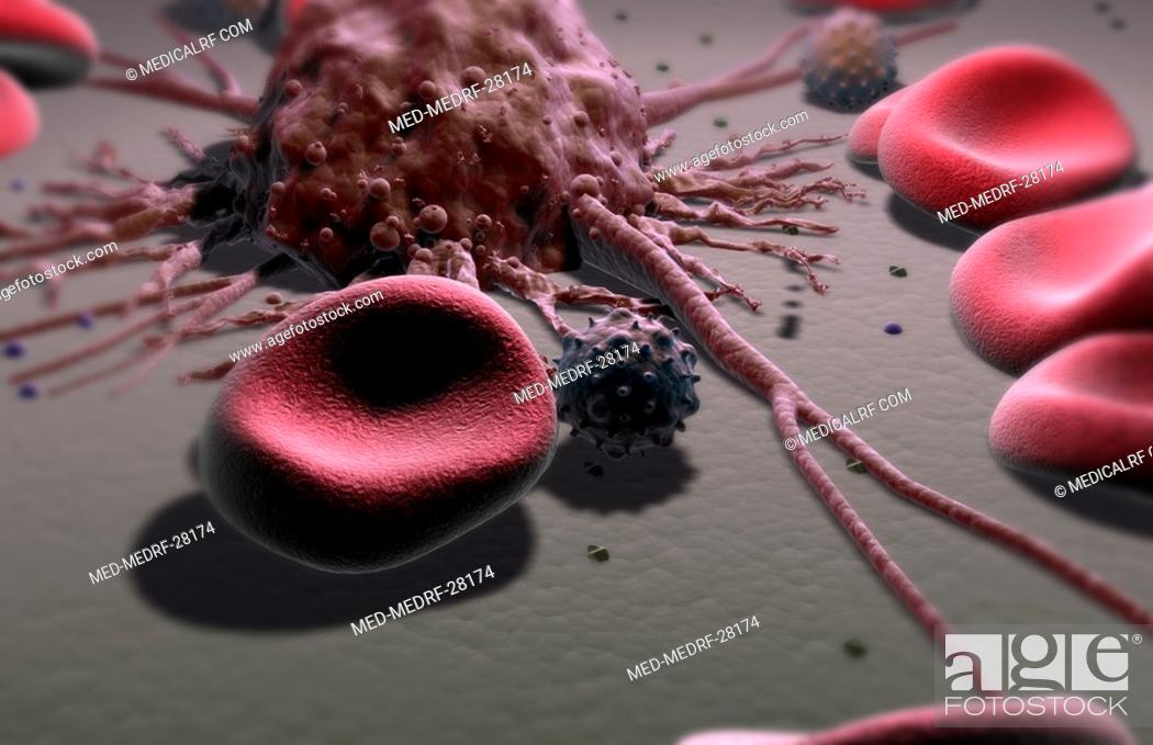 Stock Photo: Metastasis.