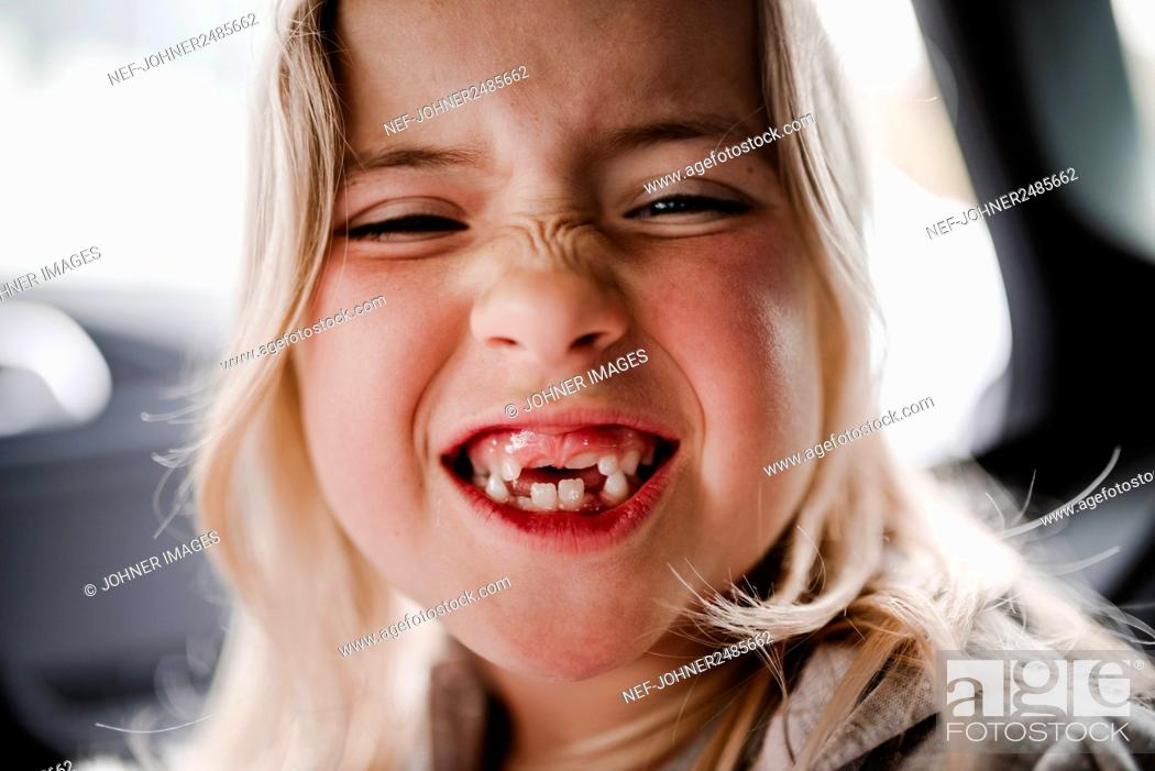 Stock Photo: Happy girl with teeth missing.