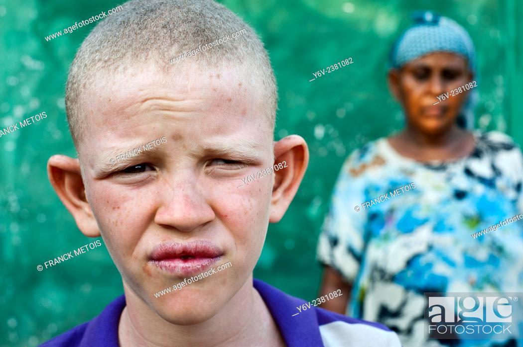 Stock Photo: Albino boy with his mother ( Ethiopia).