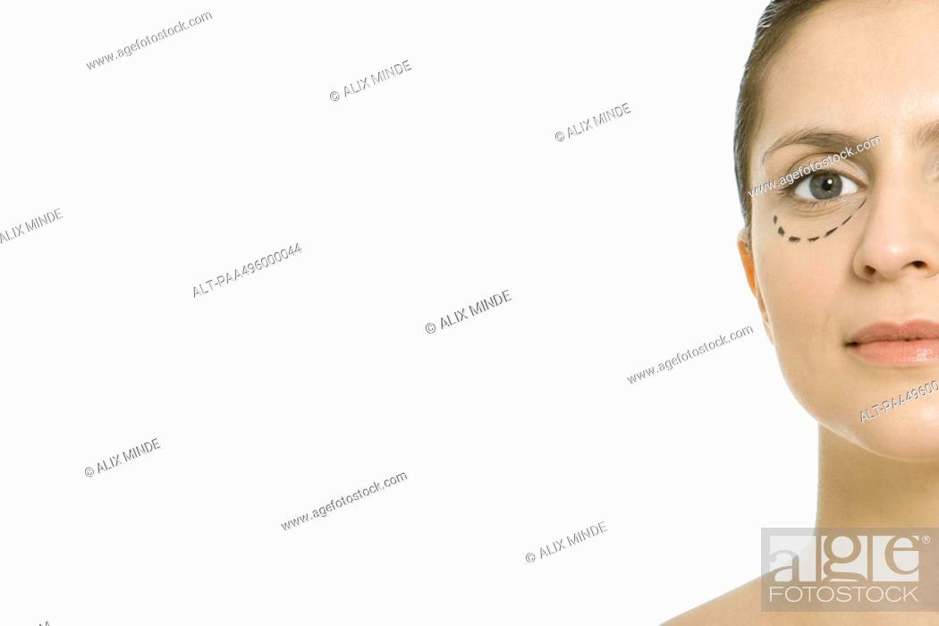 Stock Photo: Woman with plastic surgery markings under eye, looking at camera, cropped.