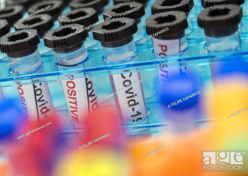 Imagen: Vials with samples of SARS-COV-2 Covid-19 in a research laboratory, conceptual image.