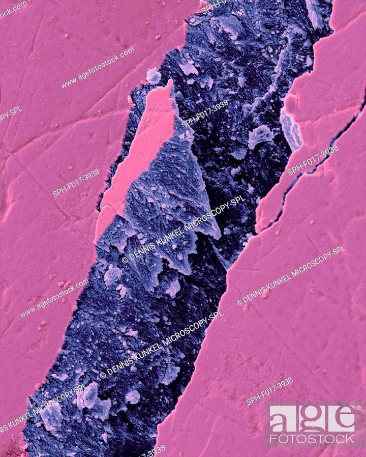 Imagen: Human tooth fractured enamel, coloured scanning electron micrograph (SEM). Fracture in a tooth revealing the enamel rod morphology.