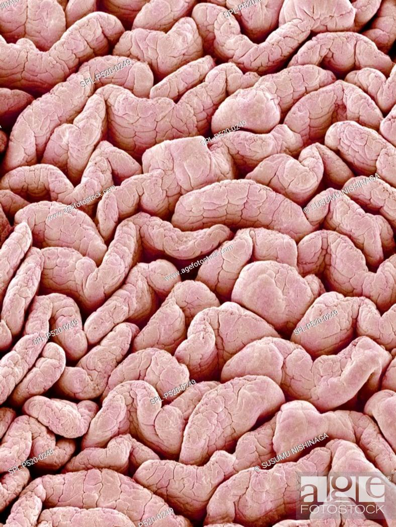 Stock Photo: Intestinal lining  Coloured scanning electron micrograph SEM of villi from the small intestine  Villi are finger-like projections that increase the surface area.