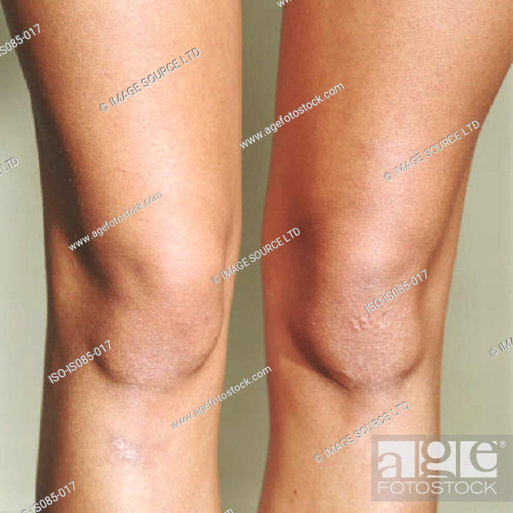 Stock Photo: Female knee.