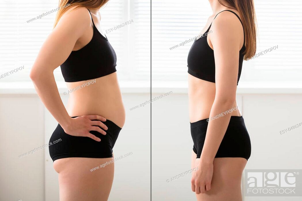 Imagen: Close-up Of Fat And Slim Woman Standing Opposite To Each Other.