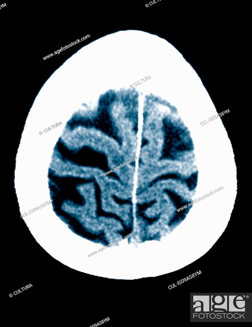 Stock Photo: CT scan 84 year old male with Alzheimer's disease. CT shows brain atrophy with small gyri and large sulci.