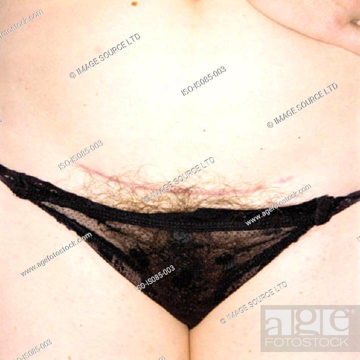 Stock Photo: Female crotch.