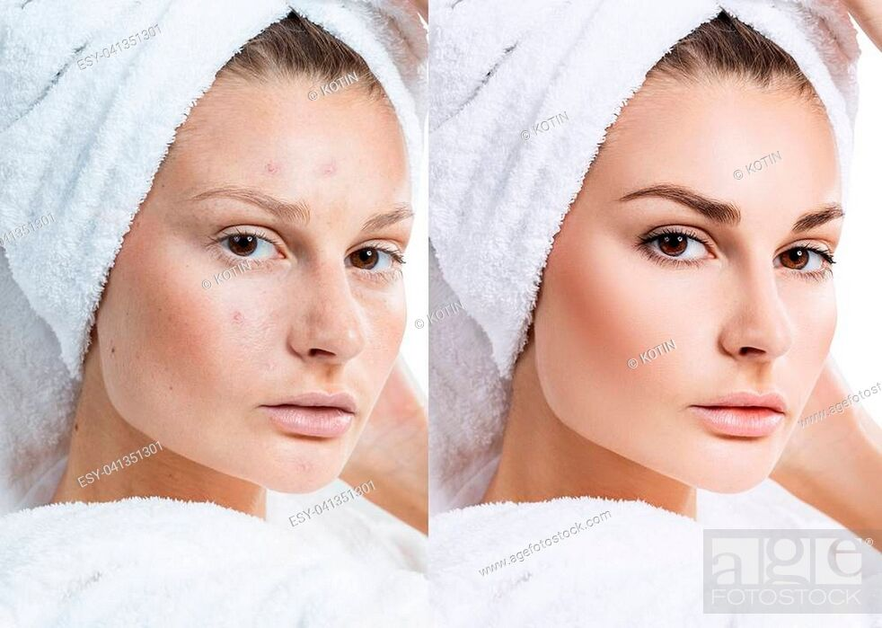 Imagen: Woman face with bath towel on head before and after treatment.