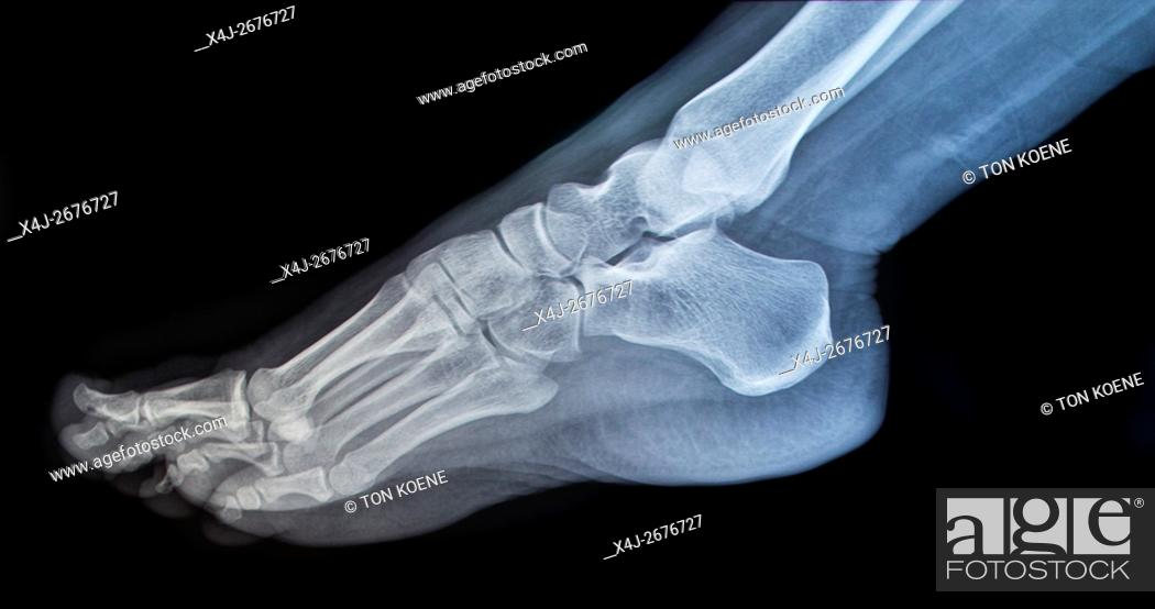 Stock Photo: X-ray of a foot.