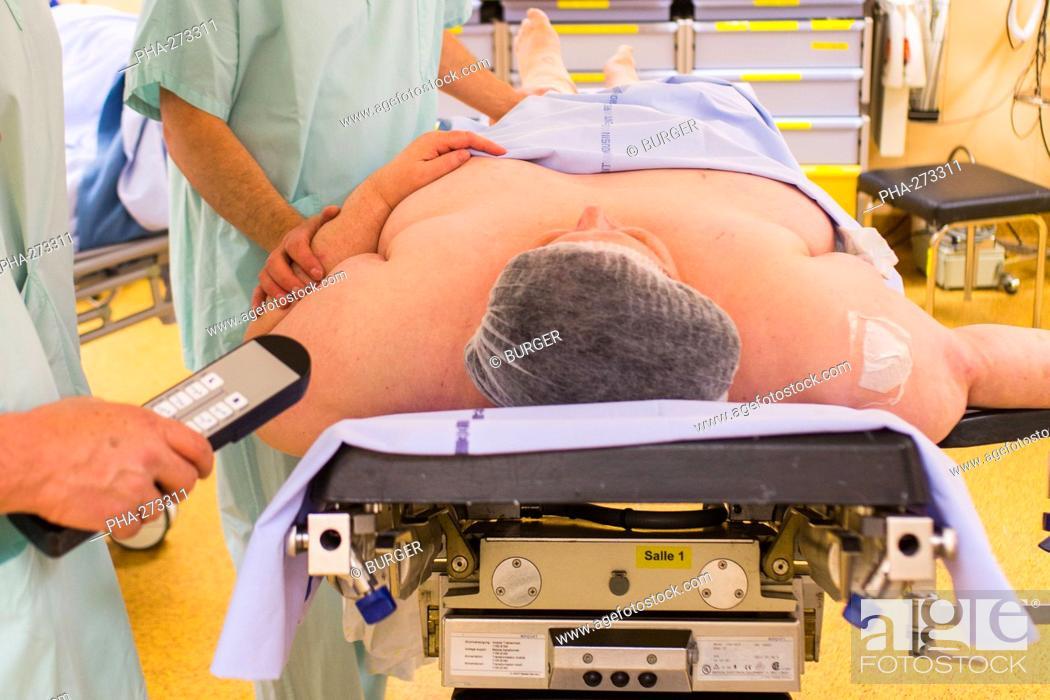 Stock Photo: Obese female patient prior to Laparoscopic Sleeve Gastrectomy, Limoges hospital.