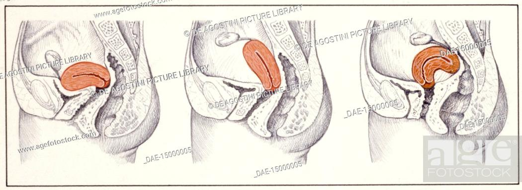 Medicine Human Body Positions Of The Uterus Normal Retroflexion And Retroversion Stock Photo Picture And Rights Managed Image Pic Dae 15000005 Agefotostock