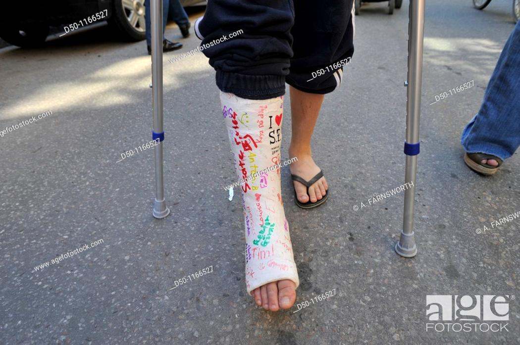 Stock Photo: Boy with crutches and a broken leg with a cast, Stockholm, Sweden.