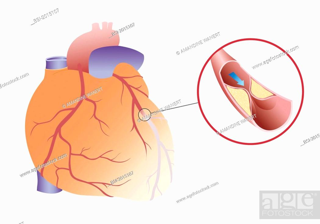 HEART ATTACK, DRAWING Myocardial infarction or angina caused