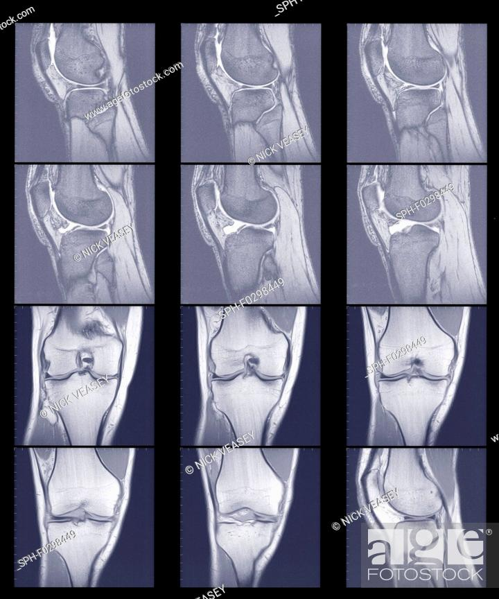 Stock Photo: Multiple scans of knee joint, MRI.