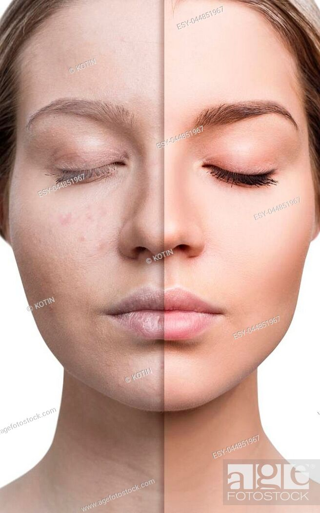 Imagen: Woman with acne before and after treatment and make-up. Skin care concepts.
