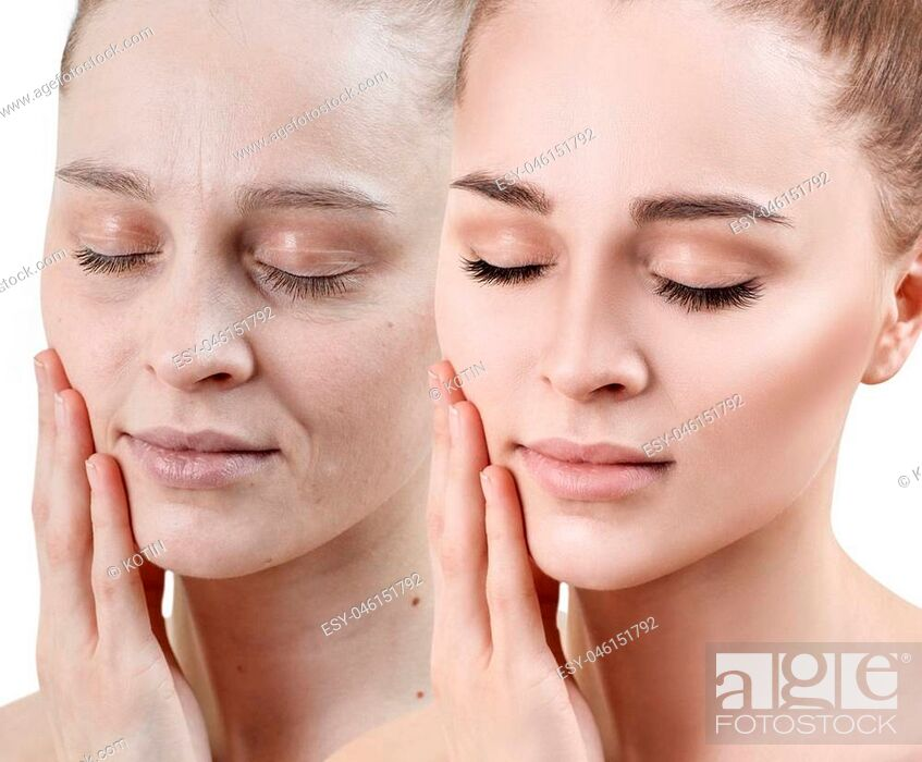 Imagen: Portrait of woman before and after skin rejuvenation. Recovery concept.