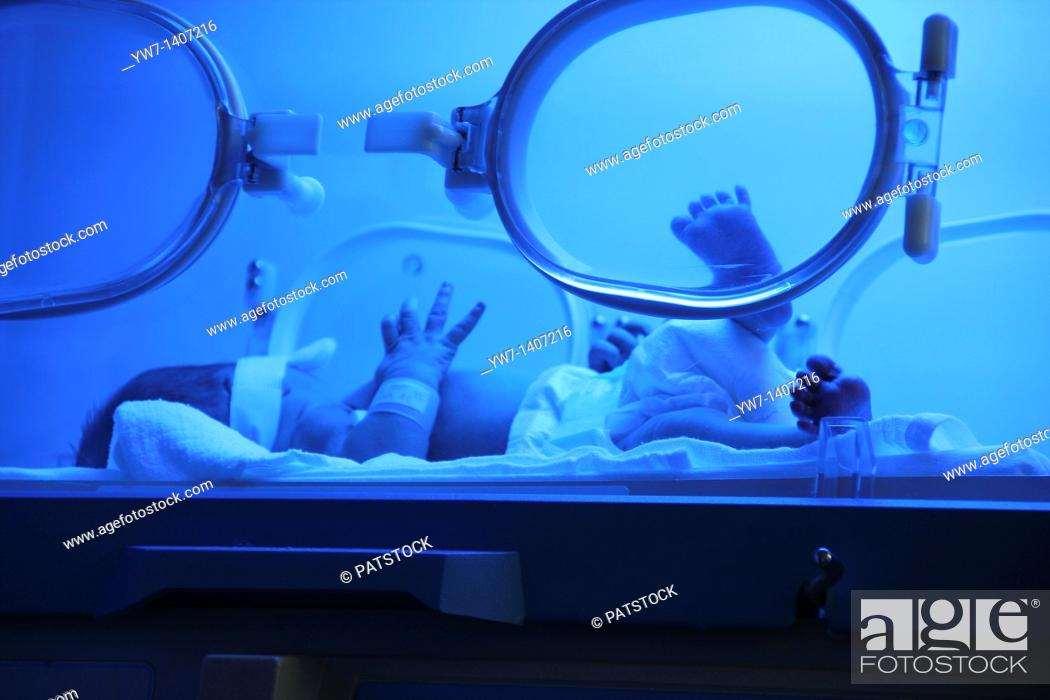 Stock Photo: Premature baby with jaundice having phototherapy.
