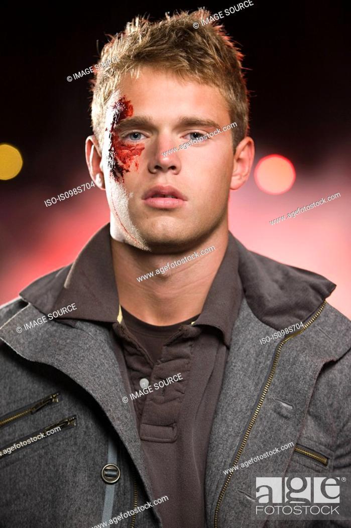Stock Photo: Teenage boy with facial injuries.