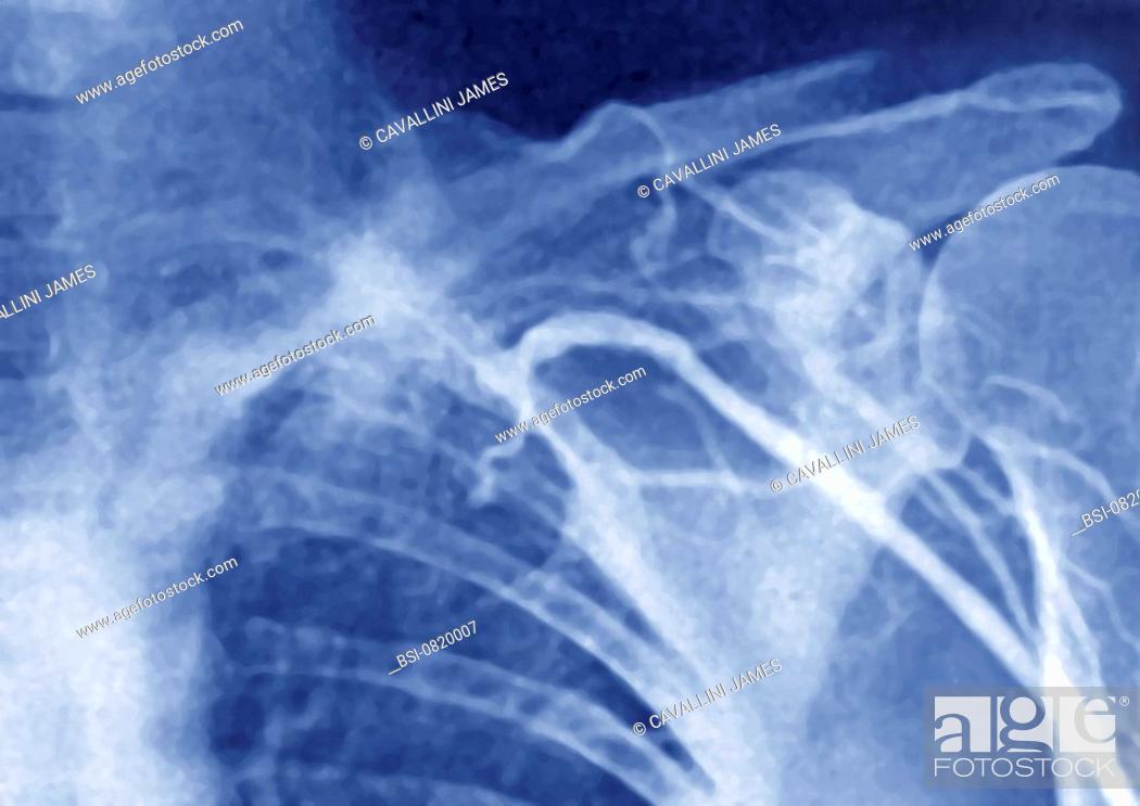 THOMBOSED VEIN, ANGIOGRAPHY Thrombosis of the brachiocephalic vein ...