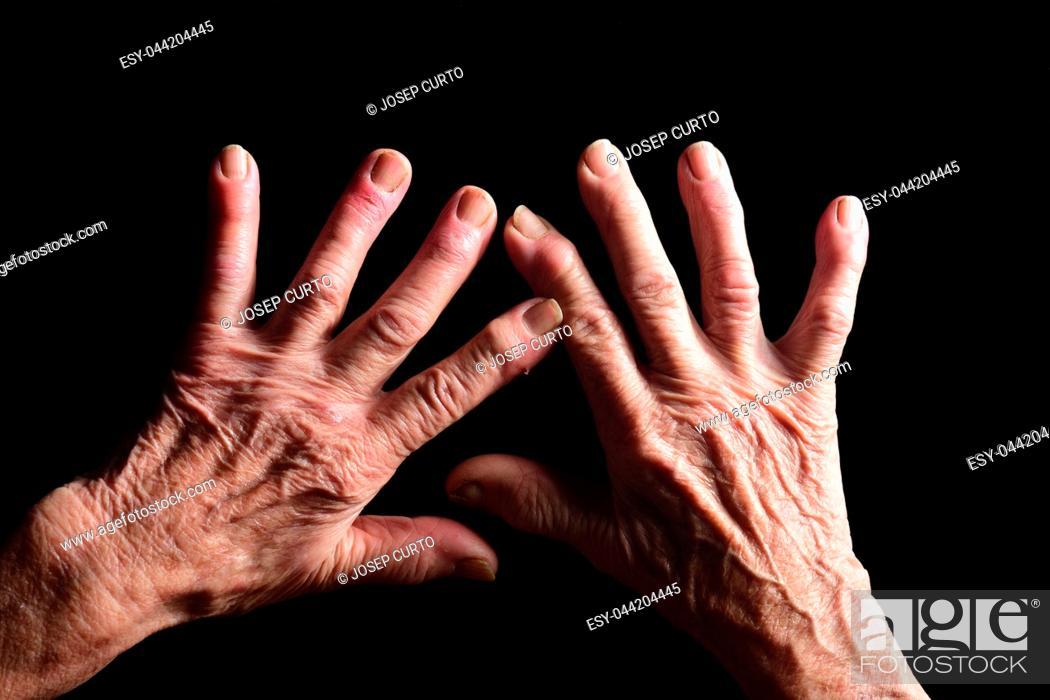 Stock Photo: hands of elderly woman.