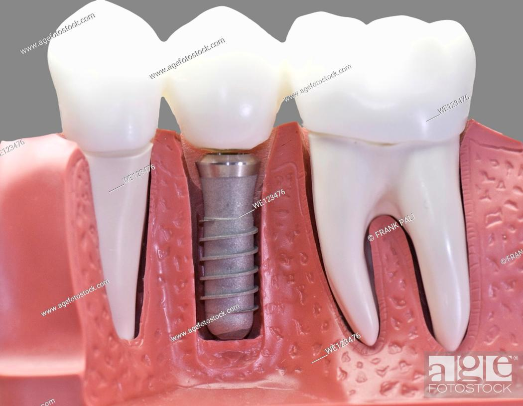 Stock Photo: This model show the teeth have been capped and the stainless pin in the gums.With 50% gray.