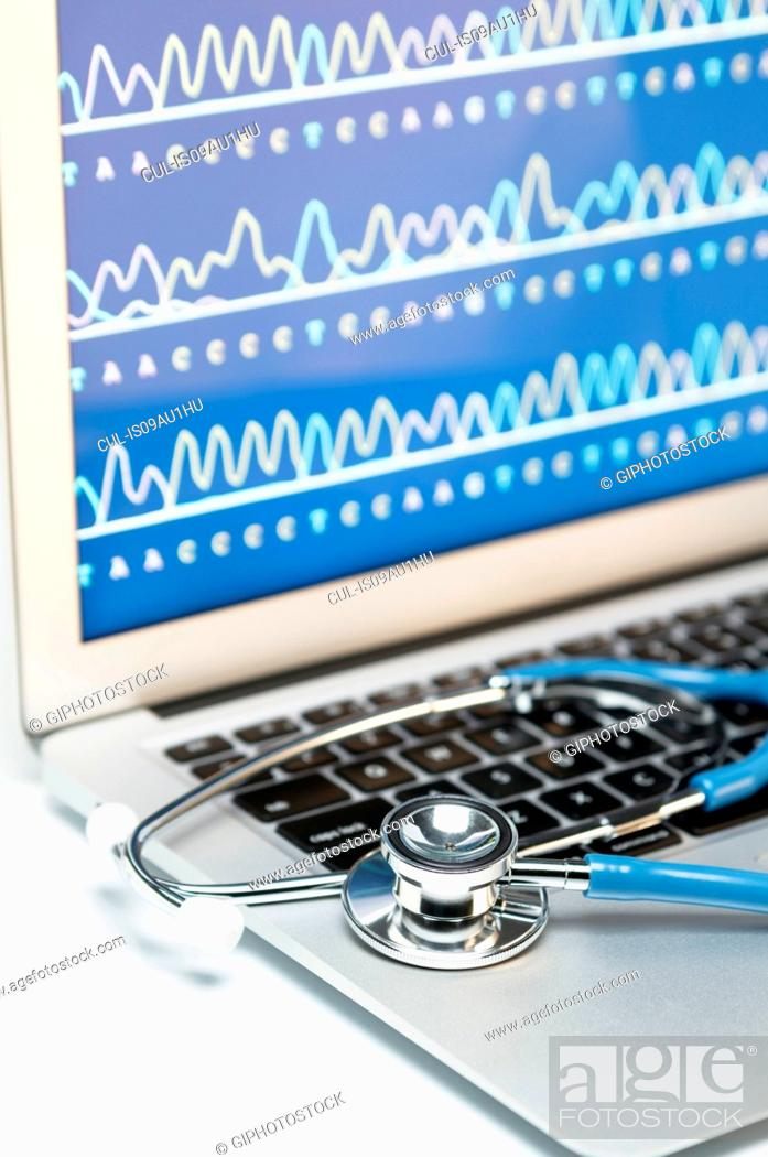 Imagen: Medical genetics. Acoustic stethoscope on a laptop computer, that displays results of automated DNA sequencing.