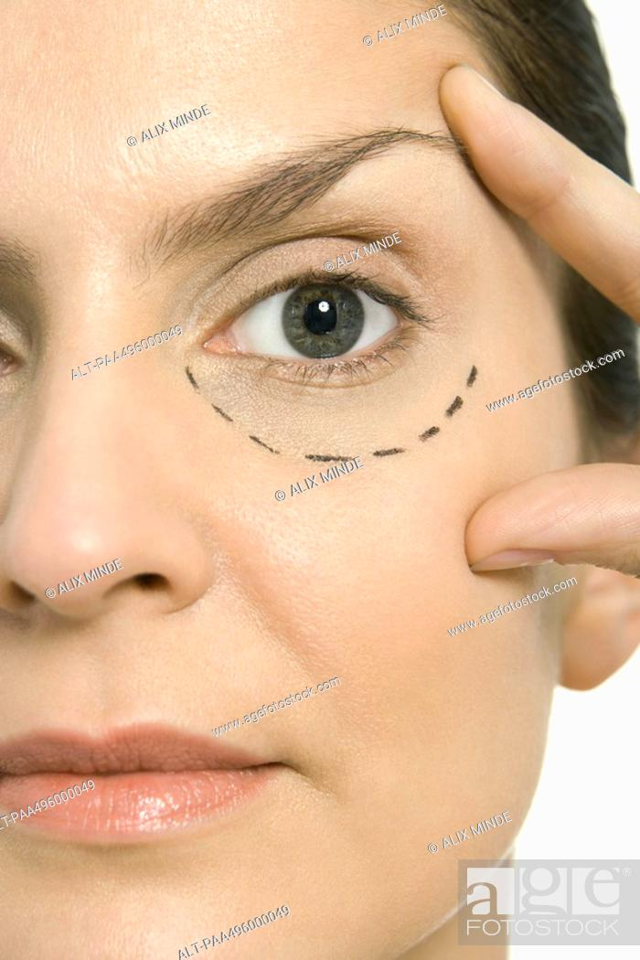 Stock Photo: Woman with plastic surgery markings under one eye, touching face, looking at camera, close-up.