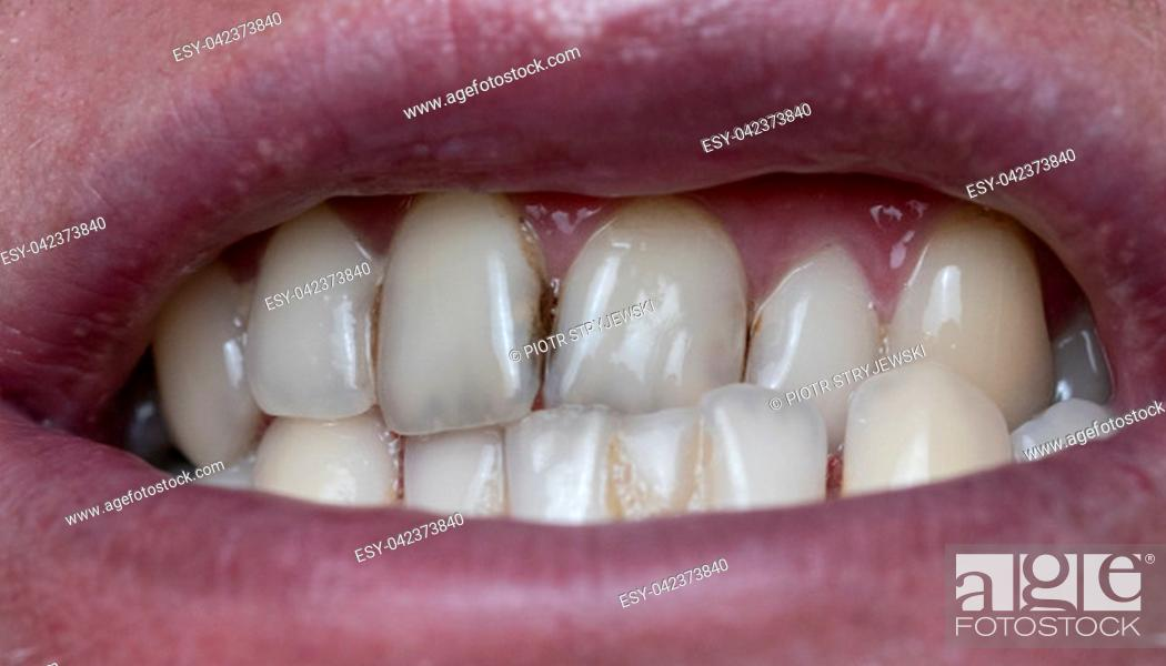 Stock Photo: Closeup of dental plaque on man's teeth caused by coffee residual.