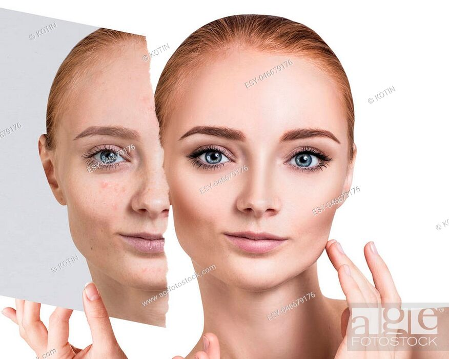 Imagen: Compare of old photo with acne and new healthy skin of young woman.