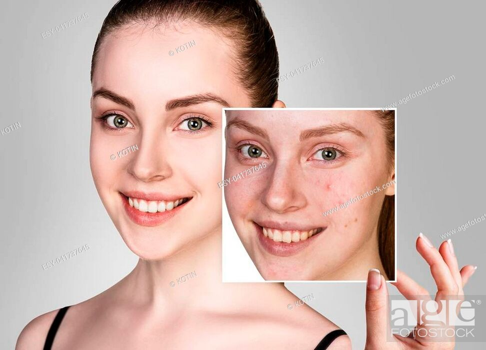 Imagen: Young woman take picture and point on problem skin before treatment.