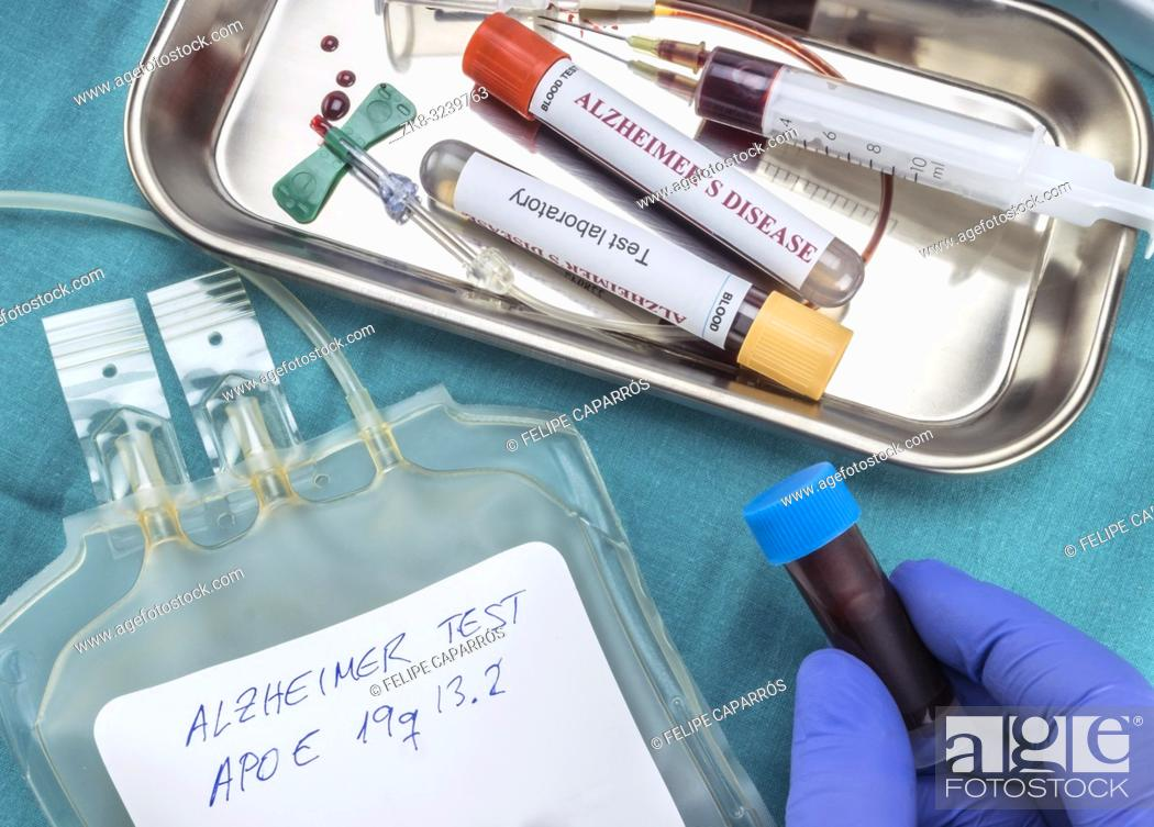 Imagen: blood sample to investigate remedy against Alzheimer's disease, conceptual image.