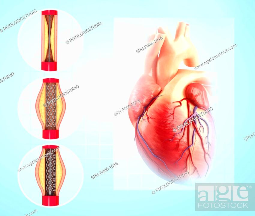 balloon angioplasty computer artwork of a stent being placed in a