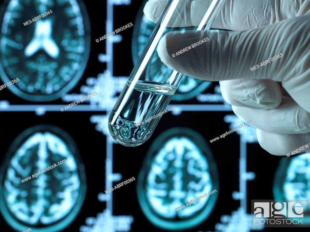 Imagen: Pharmaceutical research into brain disorders including dementia and alzheimer's.