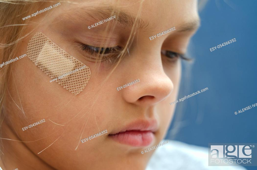 Stock Photo: On the girl's face is glued Band-Aid, close-up.
