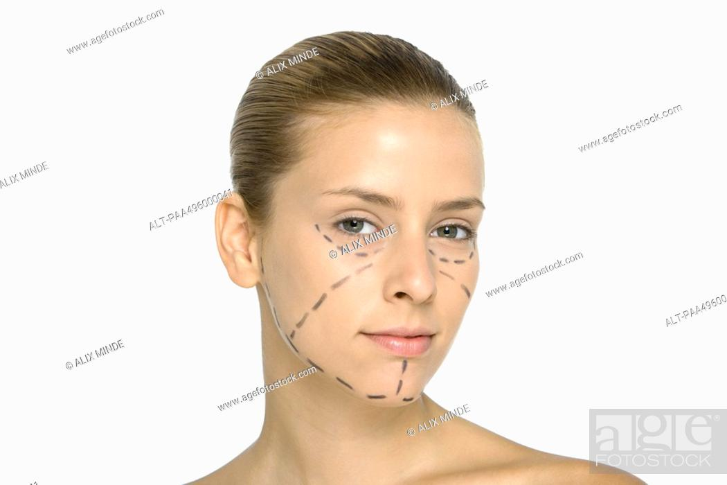 Stock Photo: Young woman with plastic surgery markings on face, looking at camera.