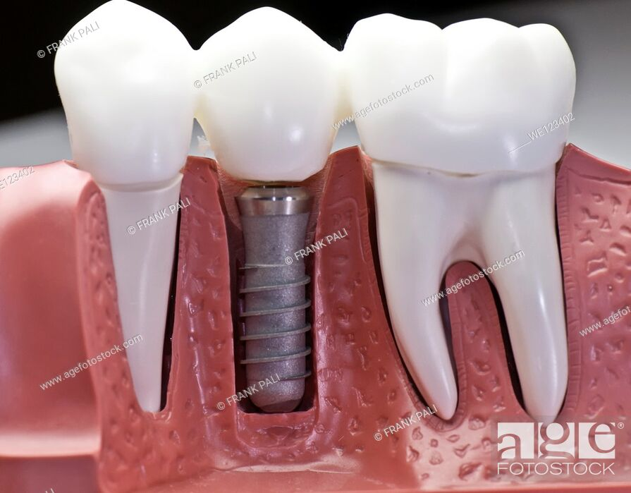 Stock Photo: This model show the teeth have been capped and the stainless pin in the gums.