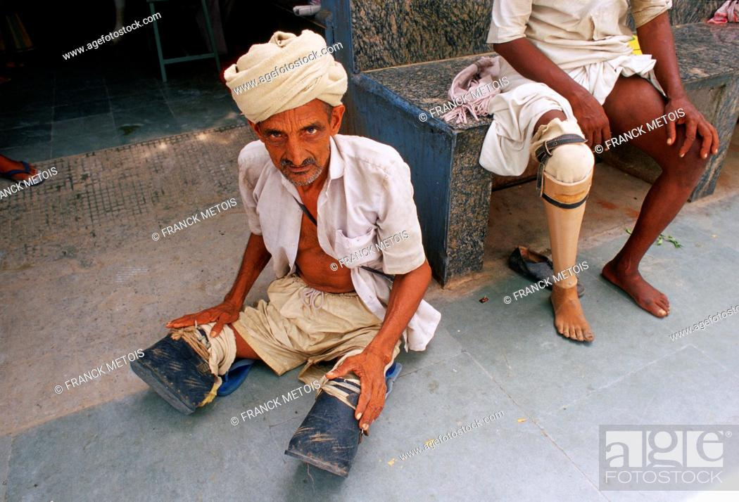 Stock Photo: Amputated men. One has a prosthetic leg while another is waiting for two. Jaipur, India.