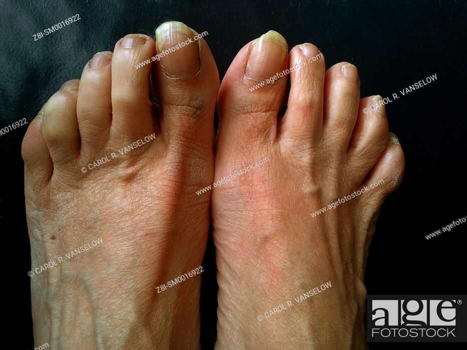 Stock Photo: Feet of a woman who is in serious need of a pedicure. Uneven and calciferous nails.