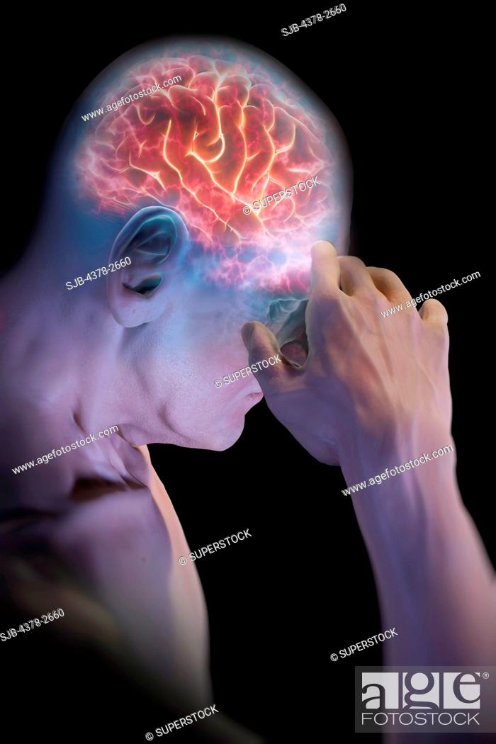 Stock Photo: Anatomical model with an illuminated brain representing head pain.