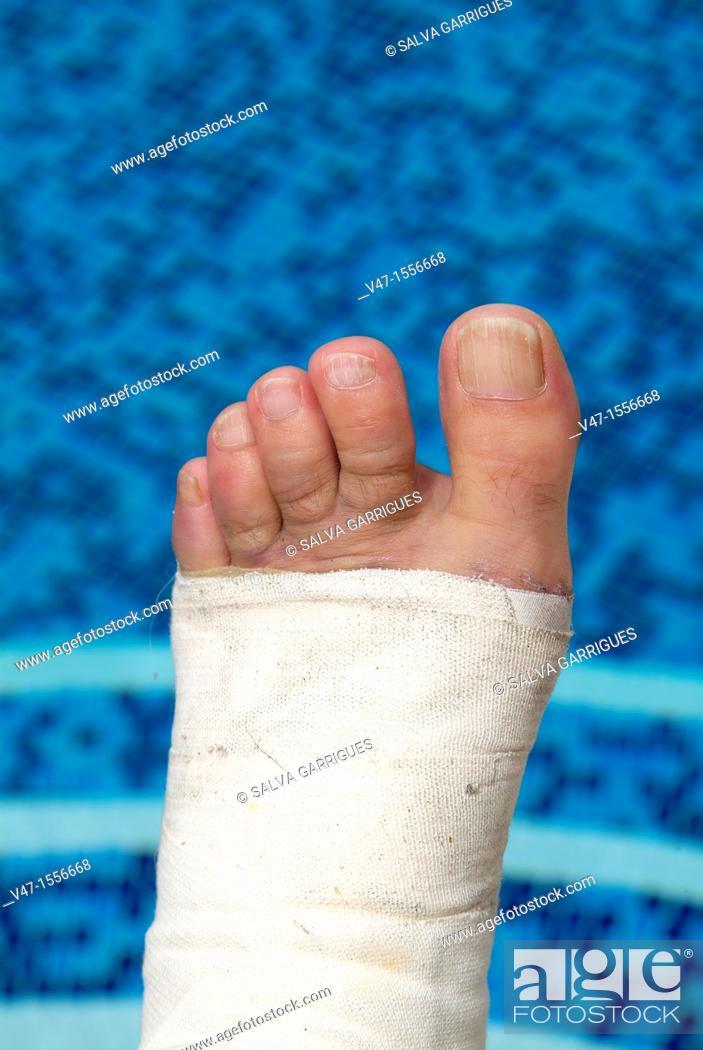 Stock Photo: broken foot, Carcaixent, Valencia, Spain, Europe.