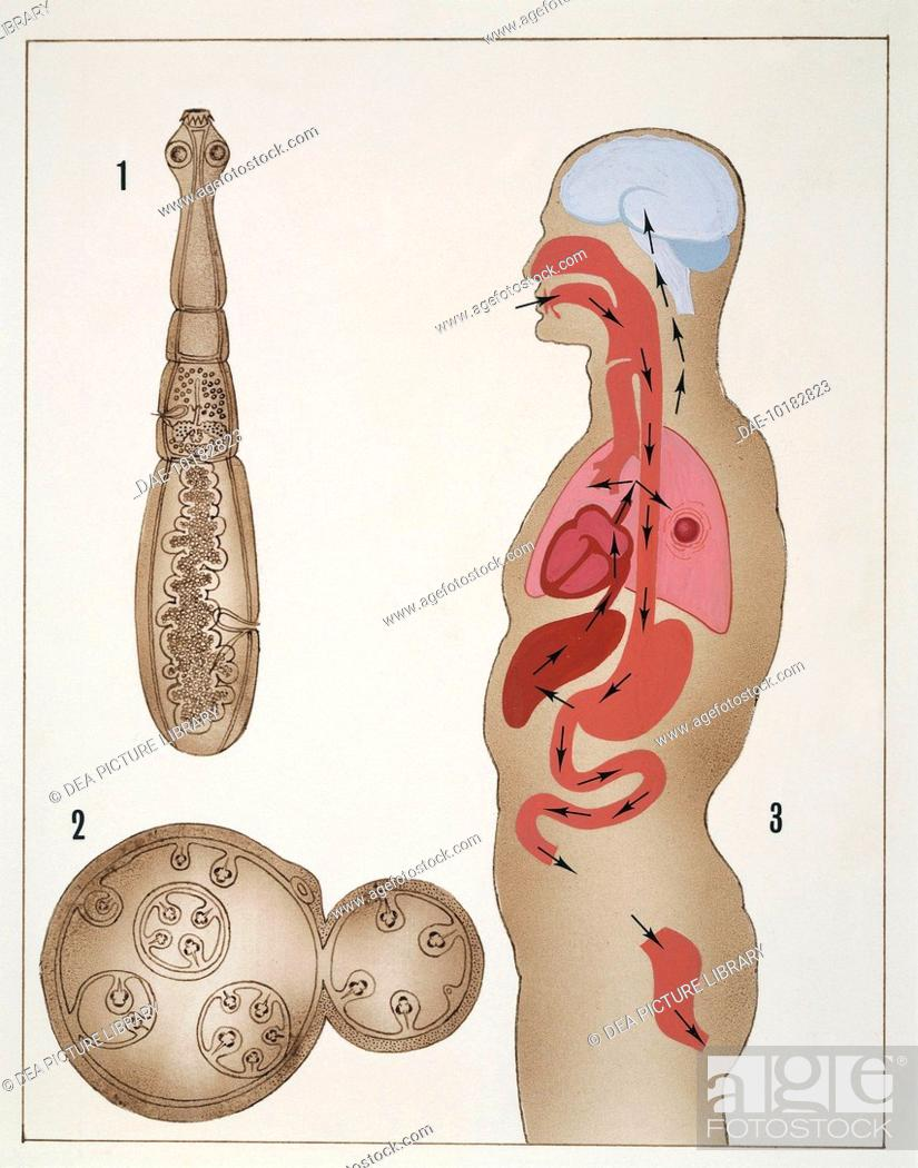 Medicine - Tapeworm (Taenia echinococcus). Drawing, Stock Photo ...