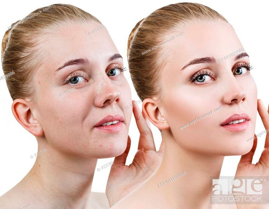 Imagen: Woman's face before and after rejuvenation or plastic surgery. Anti-aging concept.