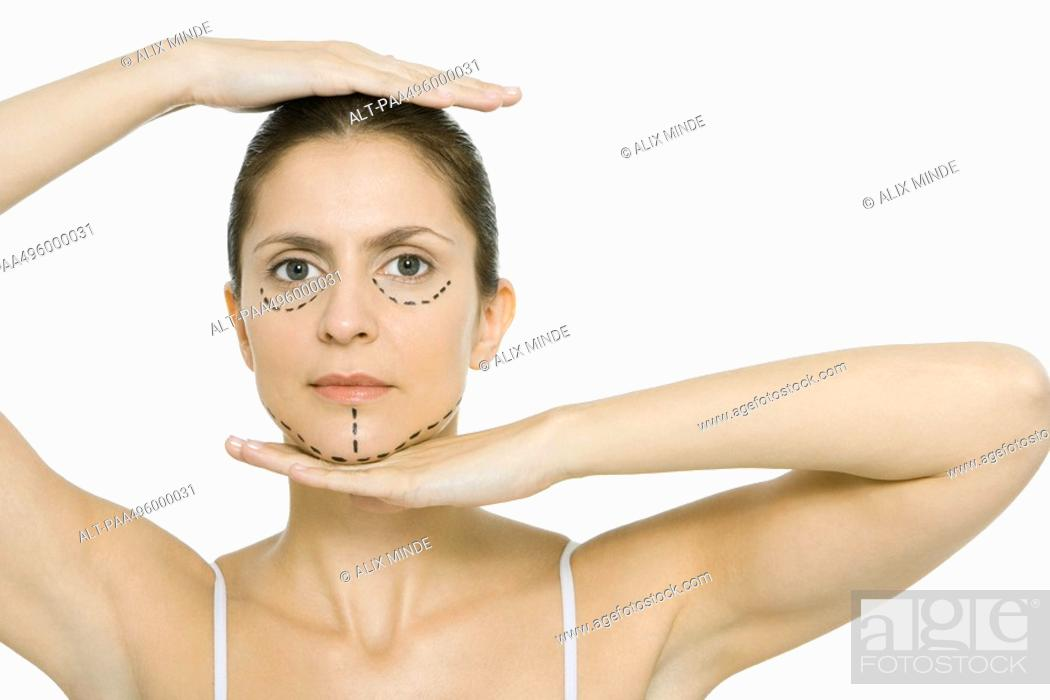 Stock Photo: Woman with plastic surgery markings on face, framing head with hands, looking at camera.