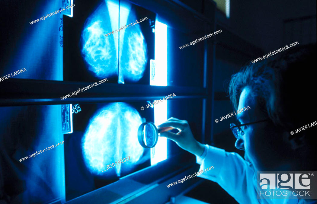 Stock Photo: Doctor looking at mammograms.