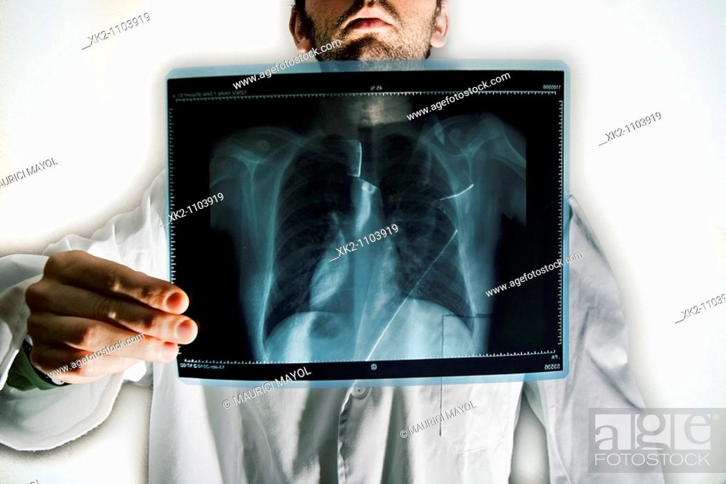 Stock Photo: Doctor's x-ray chest.