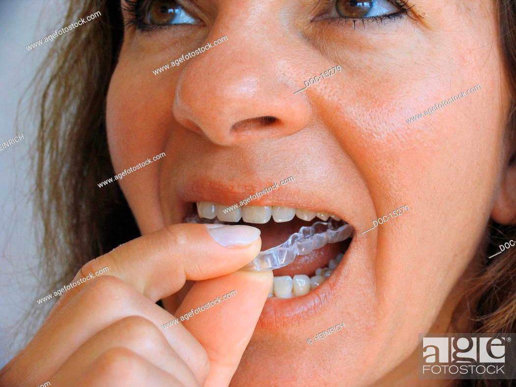 Stock Photo: Bruxismus - to step by the crunching with the teeth bruxism - the mostly unconscious nocturnal crunching with the teeth - in most blemish loads cases of the.