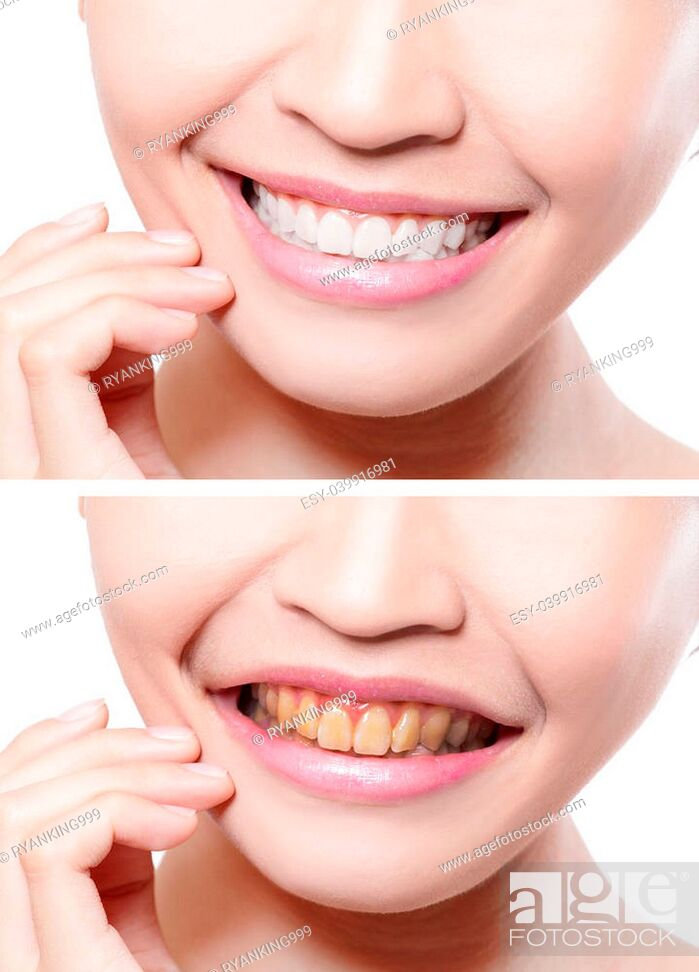 Imagen: woman teeth before and after whitening. asian beauty model.