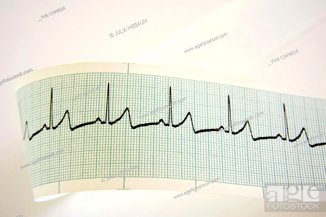 Stock Photo: Heart rate monitoring.